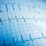 Smartwatch von Google-Schwesterfirma misst EKG